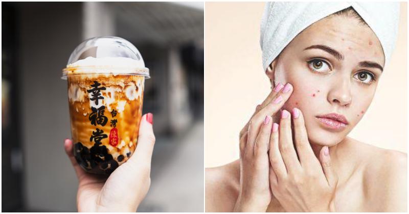 collage bubble tea acne